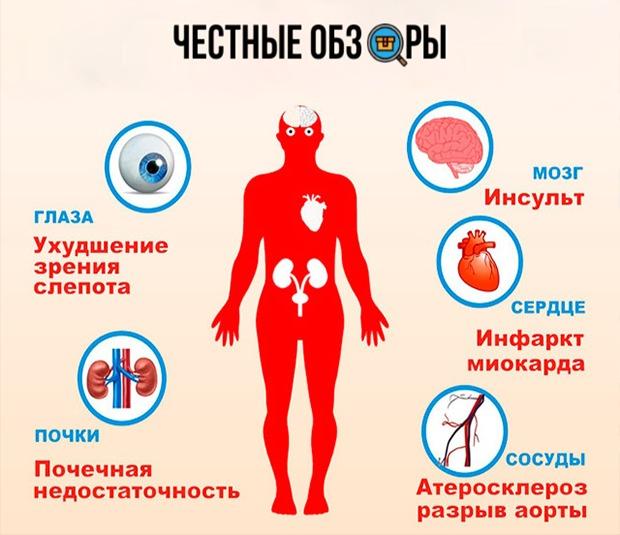 Опасности при гипертонии